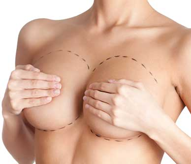 Mammoplasty-plastic-surgery